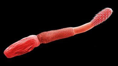 Photo of Kolcogłowy, cierniogłowy (Acanthocephala)